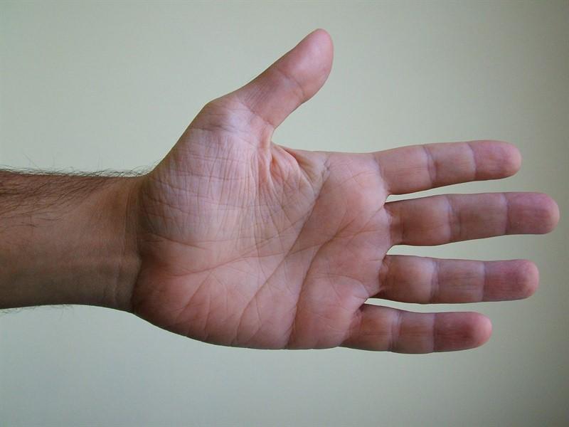 טיפול בהזעת יתר בידיים