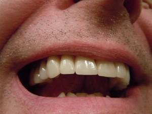 ניקוי אבנית בשיניים