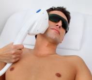 בדיקת התאמה להסרת שיער בלייזר