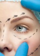 ניתוח עפעפיים עקב צניחת עפעפיים