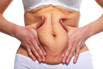מתיחת בטן דרך קופת חולים