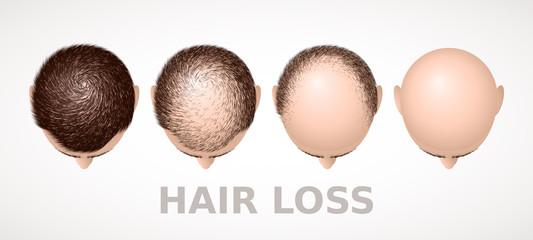 השתלת שיער בתל אביב